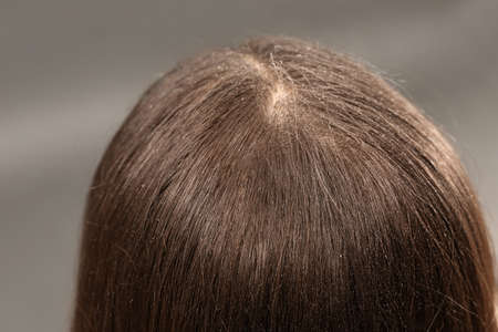 Woman with dandruff in her dark hair on grey background, closeup