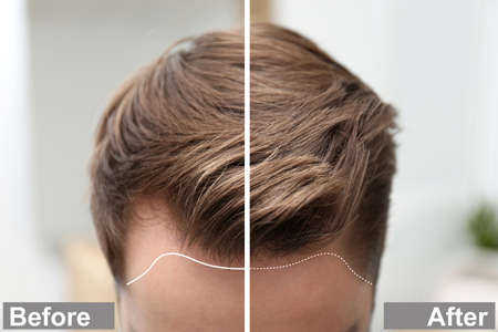 Photo pour Young man before and after hair loss treatment against blurred background, closeup - image libre de droit