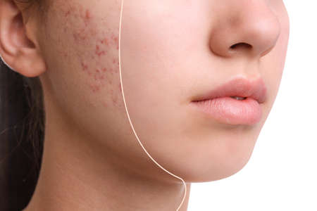 Photo pour Teenage girl before and after acne treatment on white background, closeup - image libre de droit