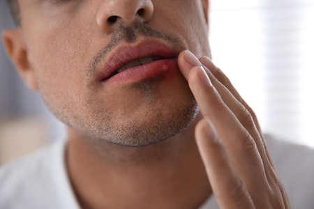 Photo pour Man with herpes touching lips against blurred background, closeup - image libre de droit