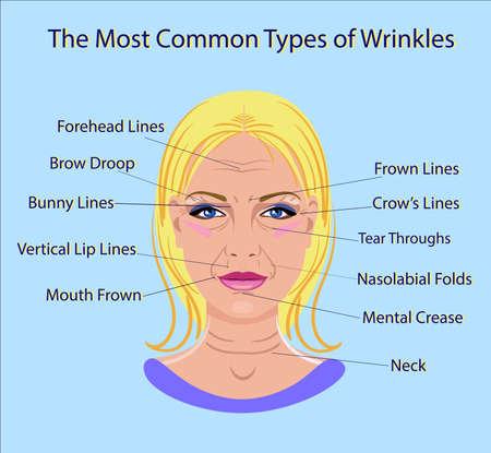Illustration pour Common Types of Facial Wrinkles. - image libre de droit