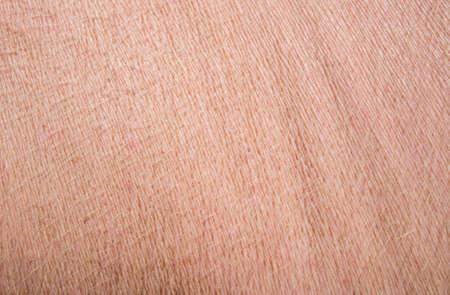 Typical pink pig skin.