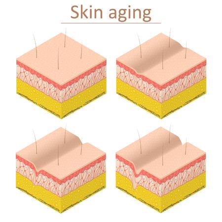 Illustration pour Skin Aging Set Isometric View. Vector - image libre de droit