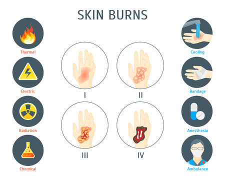 Human Skin Burns Info-graphic Card Poster.
