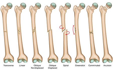 Illustration pour Bone fracture types medical vector illustration - image libre de droit