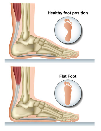 Flat foot medical vector illustration on white background