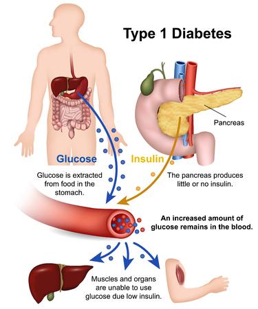 Illustration pour Type 1 diabetes medical vector illustration with english description - image libre de droit