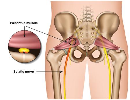 Illustration pour piriformis syndrome 3d medical vector illustration on white background - image libre de droit