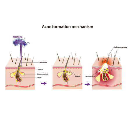 acne formation mechanism