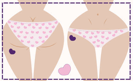 Vector illustration of girl in underwear, front and back