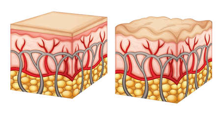 Diagram showing normal skin tissue and skin tissue with cellulite