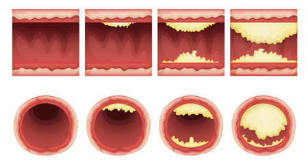 Illustration of plaque accumulation in a vessel