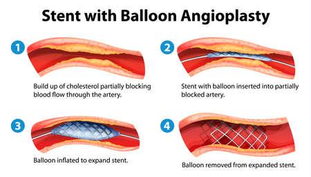 Illustration of stent angioplasty procedure