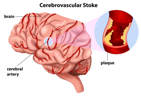Illustration of the Cerebrovascular Stroke on a white background