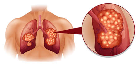 Lung cancer diagram in details illustration