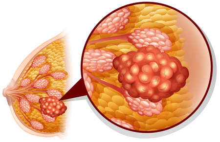 Breast cancer on white illustration