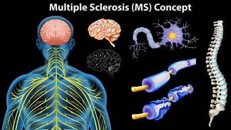 Diagram showing multiple sclerosis concept illustration