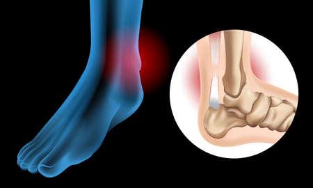 Illustration pour Diagram showing Chronic Achilles tendon tear illustration - image libre de droit