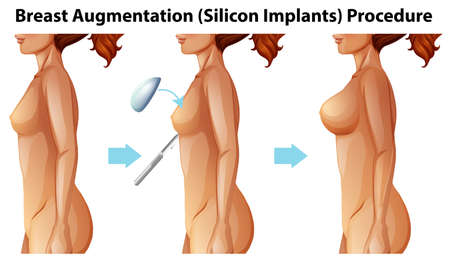 Illustrazione per A Vector of Female Breast Implants illustration - Immagini Royalty Free