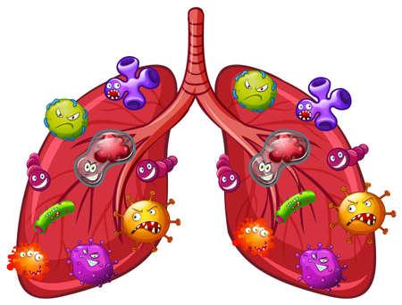Ilustración de A Vector of Lung Bacteria illustration - Imagen libre de derechos