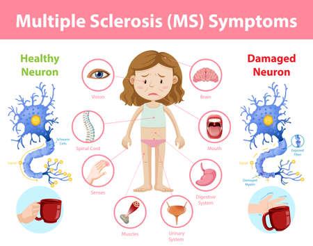Illustration pour Multiple sclerosis (MS) symptoms information infographic illustration - image libre de droit