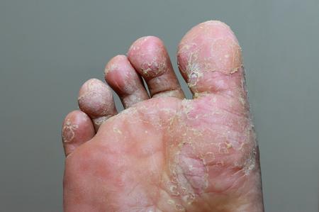 Foto de Athlete's foot - tinea pedis, fungal infection - Imagen libre de derechos