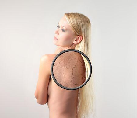 Photo pour beautiful woman with closeup of her dry skin - image libre de droit