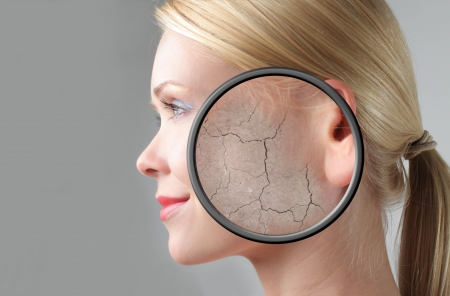 Profile of a beautiful woman with closeup of her dry skin