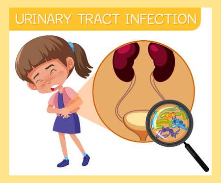 Illustration pour Girl having urinary tract infection illustration - image libre de droit