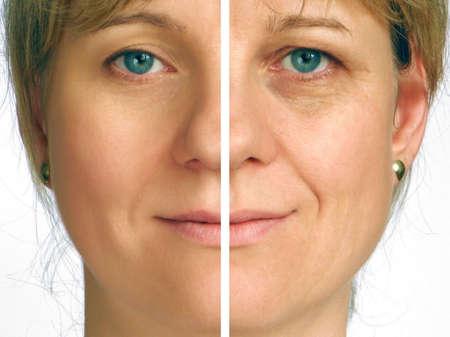 Photo pour Correction of wrinkles on half of face - image libre de droit