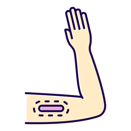 Contraceptive implant color icon. Female preservative method. Unplanned pregnancy prevention, birth control method with medical procedure. Underskin input on arm. Isolated vector illustration