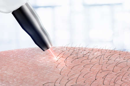 Photo pour cosmetology procedure laser hair removal on body parts. Laser epilation. - image libre de droit