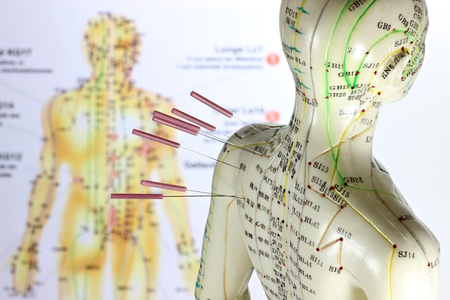 Foto de female acupuncture model with needles in the shoulder - Imagen libre de derechos