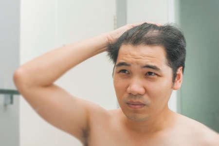 Foto de Young asian man standing in front of mirror concerned by hair loss - Imagen libre de derechos