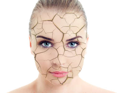 Photo for Close-up of woman cracked and damaged face as cosmetic and dehydration effect concept isolated on white background - Royalty Free Image