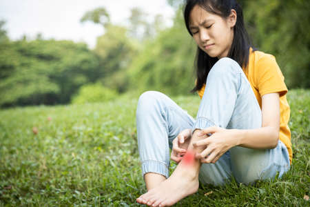 Foto de Asian child girl scratching itch on her leg with hand,female teenage with red rash,mosquito bite,fungal infection,insect bites,legs itching allergy,rash while sitting on the grass at park,Anaphylaxi - Imagen libre de derechos