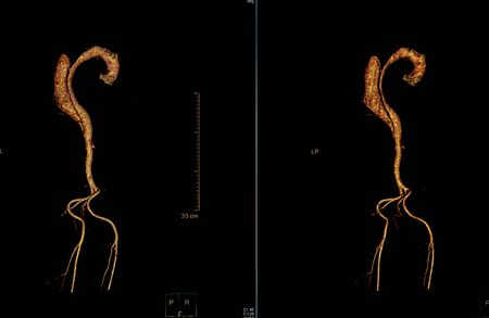 Photo pour Computer tomography angiography, CTA of whole body scan with 3D reconstruction. CT angiography for determine vascular disease - image libre de droit