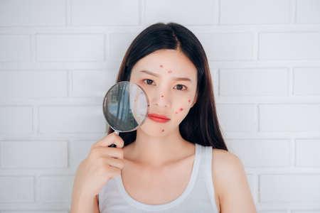 Photo pour Young Asian woman holding Magnifying glass check acne her face problem. - image libre de droit