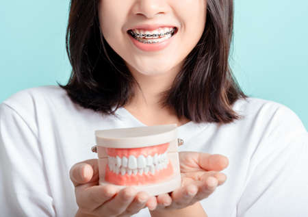 Foto de Dental braces of asian woman wearing braces with tooth sample and white teeth increase confidence for healthy on blue background isolated studio shot, Happiness teenager smiling facial expression. - Imagen libre de derechos