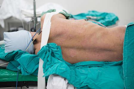 Scrub nurse scrub patient prepare for chest operation