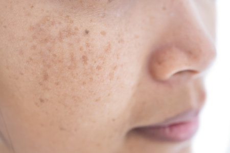 freckle on asian woman face and skinの写真素材
