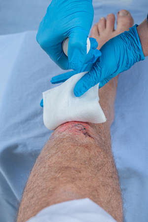Photo pour fresh blooded injury wound on the tibial bone of the leg. Sticking stitches to hold the cut. - image libre de droit