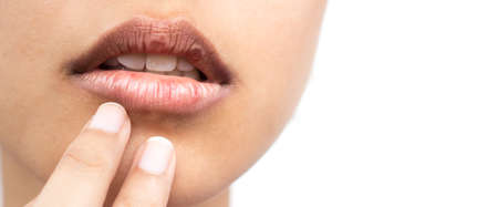 Photo for Dry lips of women - Royalty Free Image