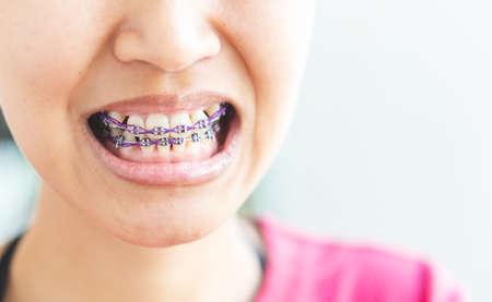 Photo pour Women braces and is dirty, not beautiful. - image libre de droit