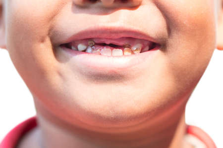 Photo pour The boy with decayed baby teeth. - image libre de droit
