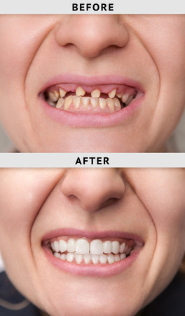 female smile after and before dental crown installation process
