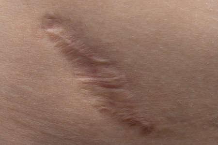 Photo pour Macro photo of the young humans scar texture - image libre de droit