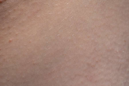 Photo pour Macro photo of the pink humans skin texture - image libre de droit