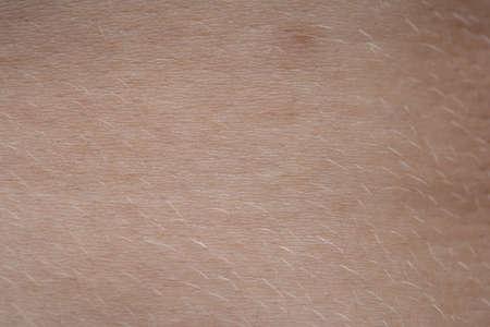 Photo pour Macro photo of the young pink humans skin with nevus - image libre de droit