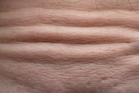 Photo pour Photo of wrinkles on humans forehead, macro shooting - image libre de droit